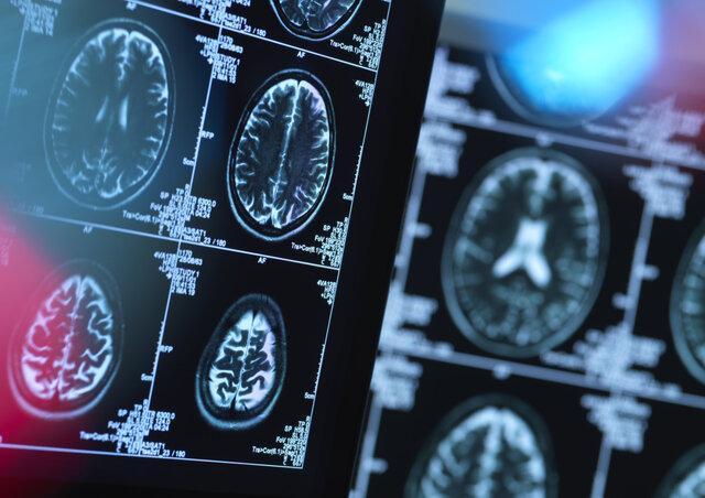 پیش بینی بیماری هانتیگتون با هوش مصنوعی